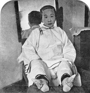 Chinese woman with bound feet